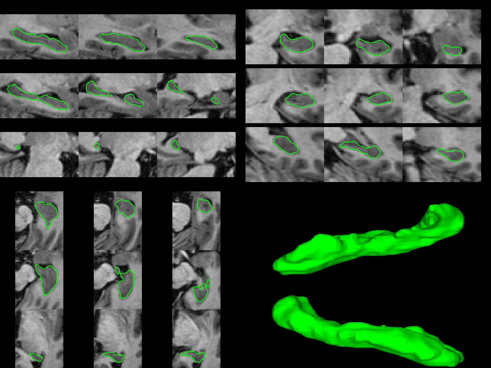 f24c4da0efc650 Hippocampus Segmentation